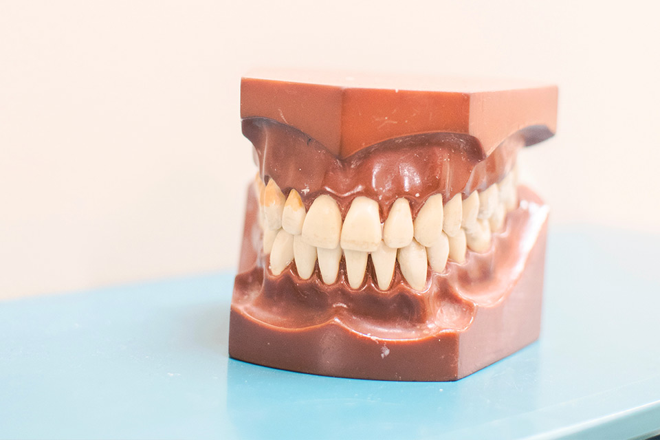 Implants Supported Dentures