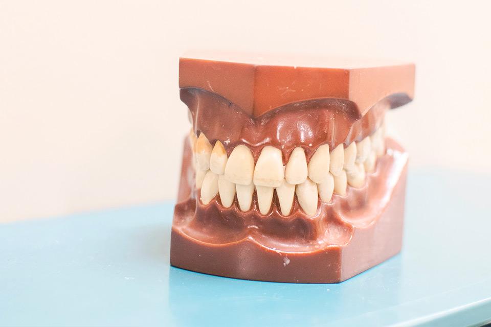 smileville calgary dental pocelain veneers
